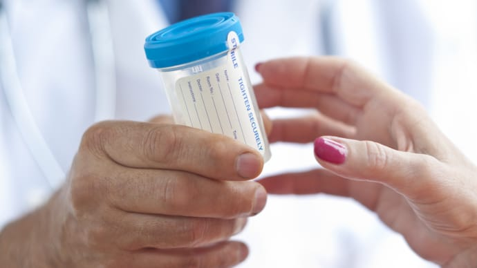 OSHA Clarifies When Post-Accident Drug Testing Is Permitted